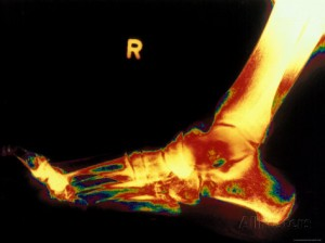 x-ray of right foot poster image from allposters.com