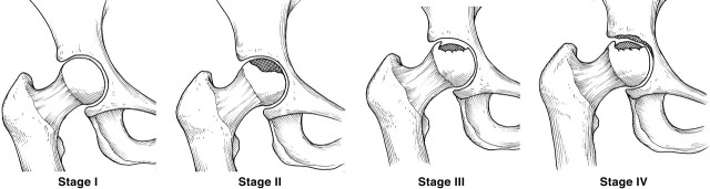 Image taken from the Journal of the American Academy of Orthopaedic Surgeons  linked from http://osteonecrosis.me